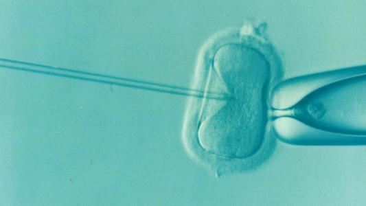 IVF Infertility